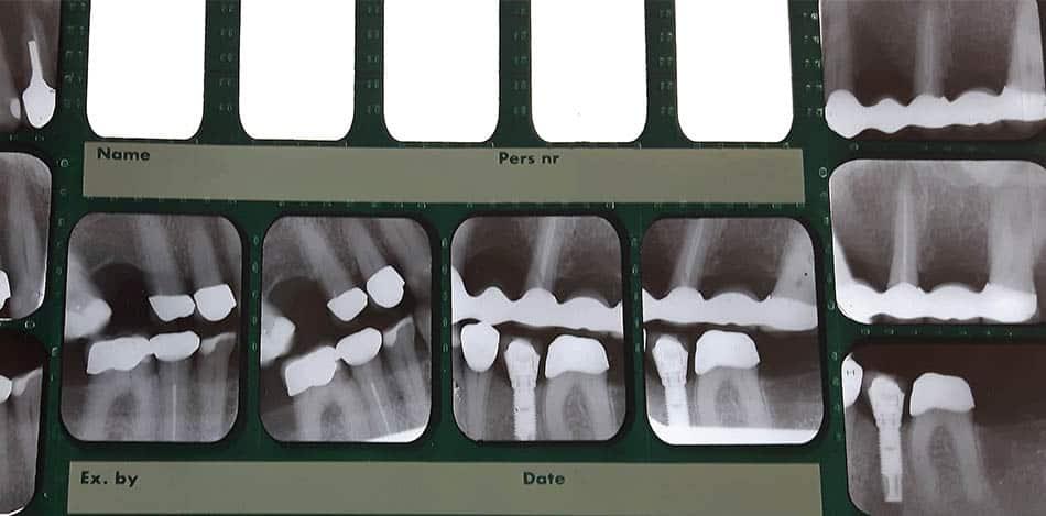 Tandvårdskortet